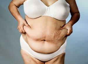 Женское ожирение фото