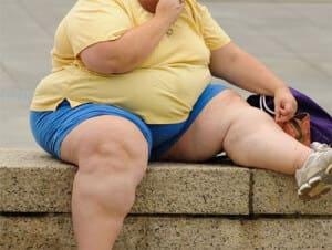 Ожирение фото девушек