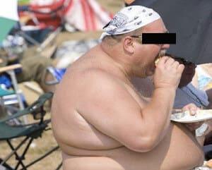 Ожирение фото мужчин