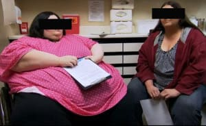 Фото страдающих ожирением