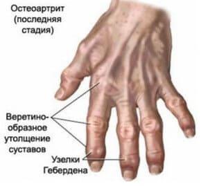 Почему болят суставы пальцев