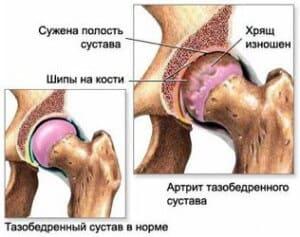 Почему болят тазобедренные суставы
