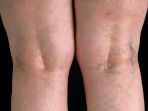 Варикоз вен на ногах начальная стадия фото