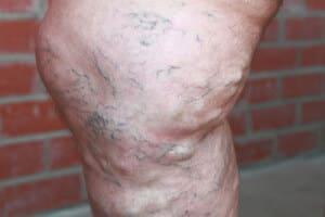 Варикоз вен на ногах фото