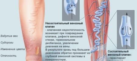 varikoznoe-rasshirenie-ven-2