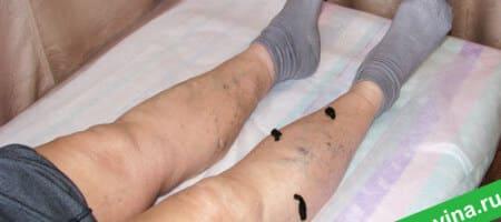 girudoterapiya-pri-varikoze