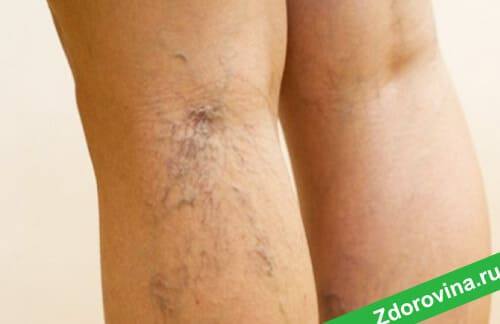 Как выглядит варикозное расширение вен на ногах
