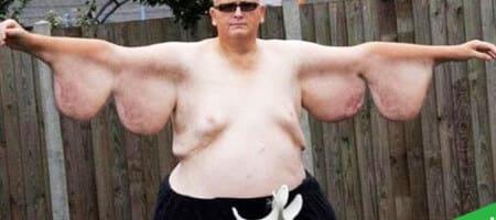 Опасности быстрого похудения