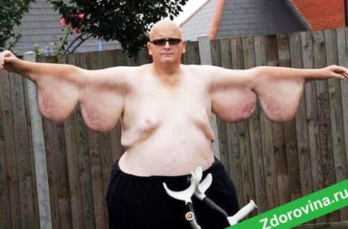 Опасности быстрого похудения: чем грозит быстрое снижение веса